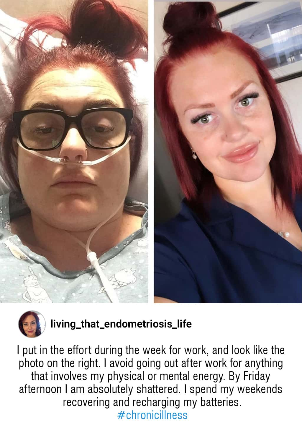 An Instagram Post With An Image Of A Woman Sick And In The Hospital Next To An Image Of The Same Woman Looking Healthy And Happy With A Description Of How Difficult Chronic Illness And Disability Is